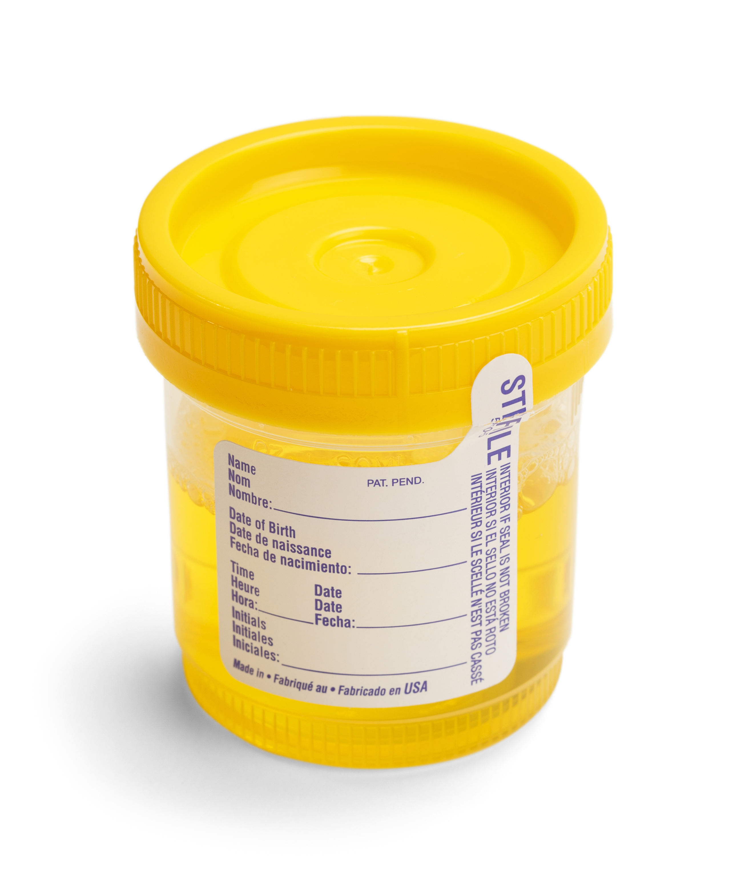 What Is The Irony Of Urine Testing In Ohio DUI/OVI Cases ...